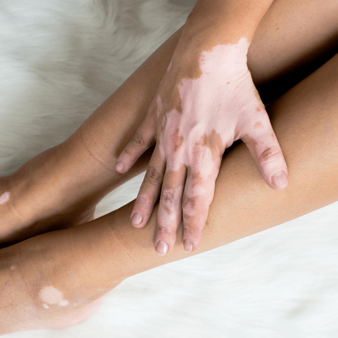 Webinar Autoimmune Skin Conditions